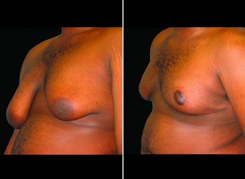 Male Breast Reduction Before And After Quarter Image