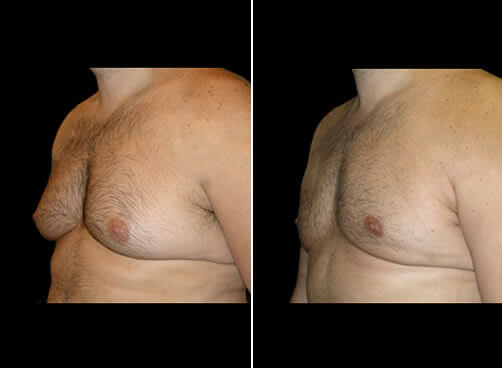 Gynecomastia Before And After Quarter View