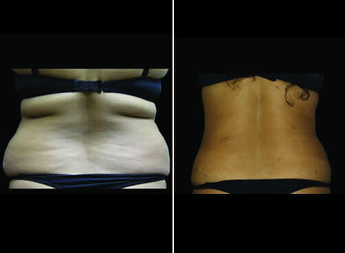 Super Wet Liposuction Before And After Back View