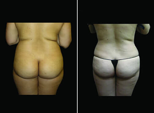 Super Wet Liposuction Before And After