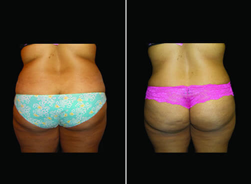 Super Wet Liposuction Before And After Back Image