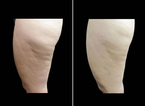 Liposuction And Cellulaze Before And After
