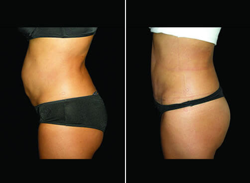 Lipo And Mommy Makeover Before And After Left Side View