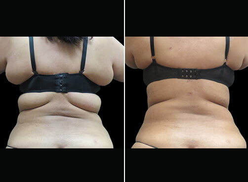 Female Lipo Before And After Back View