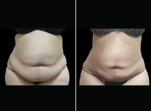 Female Lipo Before And After Front View
