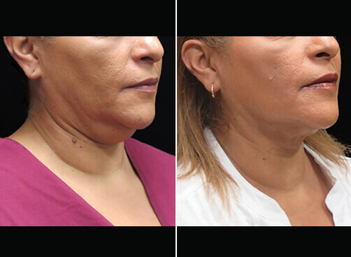 Liposuction For Women Before And After Quarter Image