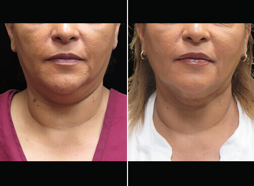 Chin Liposuction Before And After Front Image