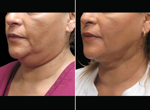 Chin Liposuction Before And After Quarter Image