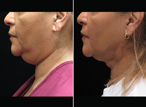 Chin Liposuction Before And After Side Image