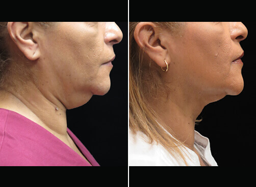Chin Lipo Before And After