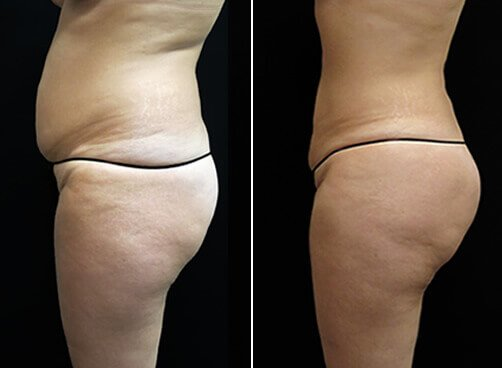 Lipo For Women Before And After