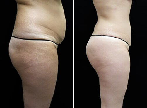 Female Lipo Before And After