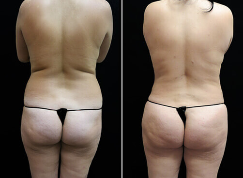 Liposuction For Women Results