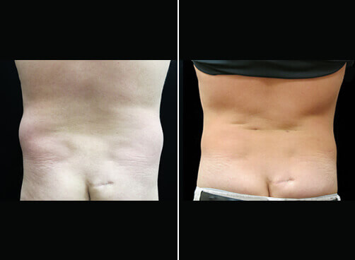 Back Lipo For Men Before And After