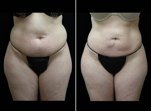 Female Liposuction Before And After Front Image