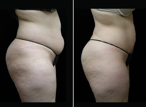 Female Liposuction Before And After Side Image