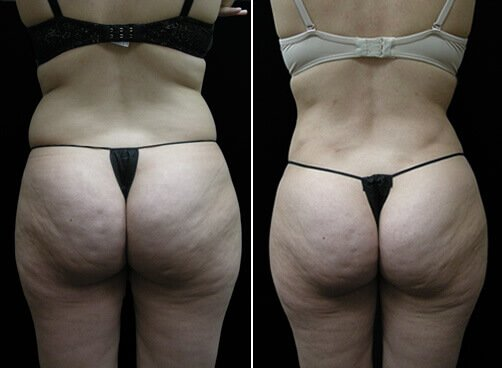 Female Liposuction Before And After Back Image