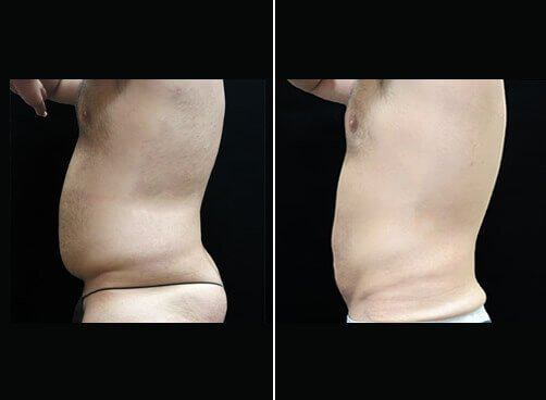 Liposuction For Men Before And After