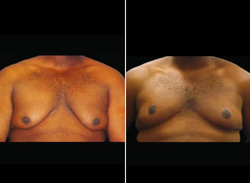 Male Liposuction Before And After Front View