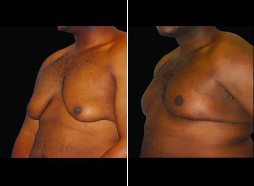 Male Liposuction Before And After Quarter View