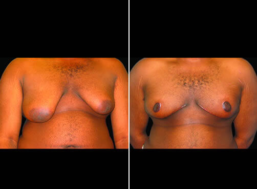 Male Breast Lipo Before And After Front Image