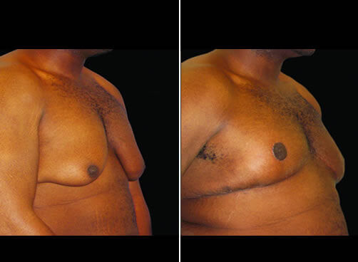 Male Breast Lipo Before And After Side Image