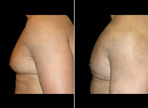 Male Lipo Before And After Side View