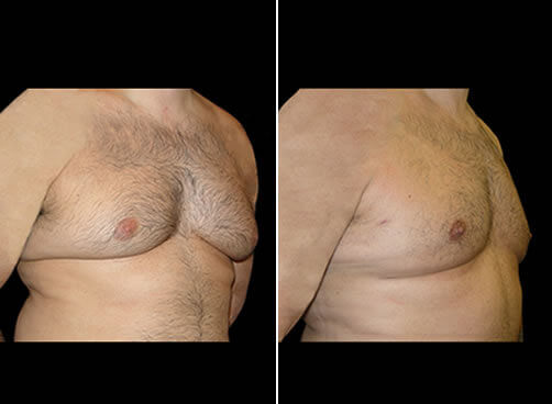 Male Lipo Before And After Quarter Image