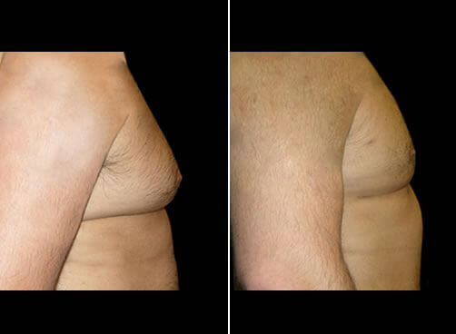 Male Lipo Before And After Side image
