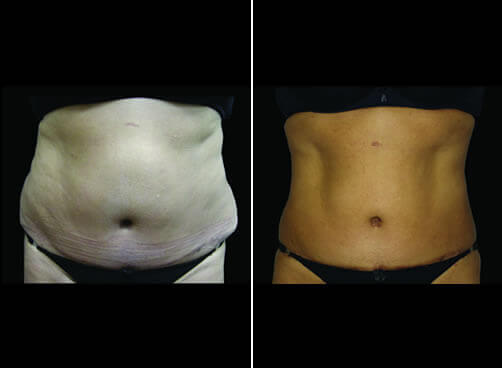 Female Liposuction Results