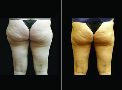 Liposuction For Women Before And After Back Image