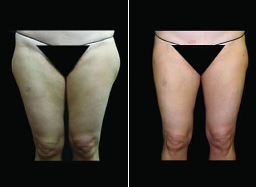 Liposuction For Women Before And After Front Image