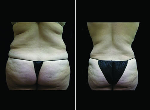 Female Lipo Before And After Back Image