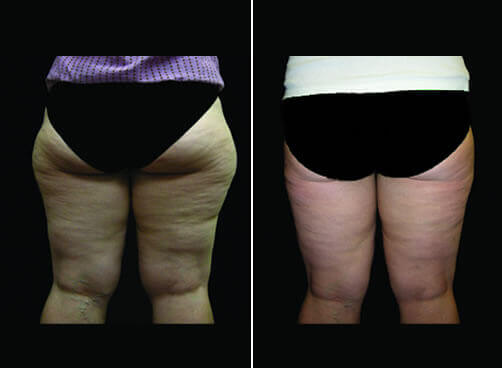 Lipo For Women Before And After Back Image