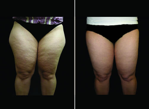 Lipo For Women Before And After Front Image