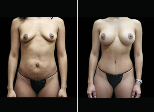 Female Liposuction Before And After Front View