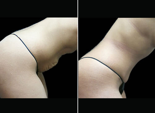 Female Liposuction Before And After Side View