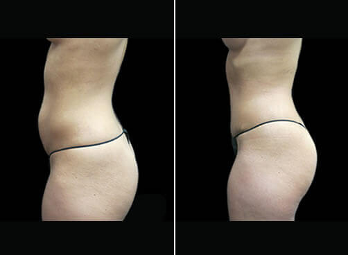 Female Liposuction Before And After Quarter View