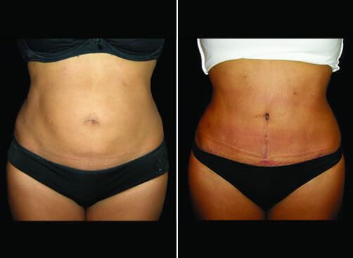 Female Lipo Before And After Front Image