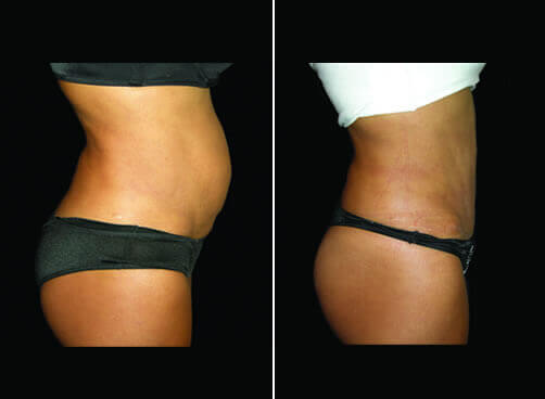 Female Lipo Before And After Results