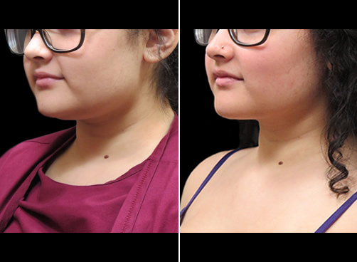Chin Lipo Before And After Left Quarter View