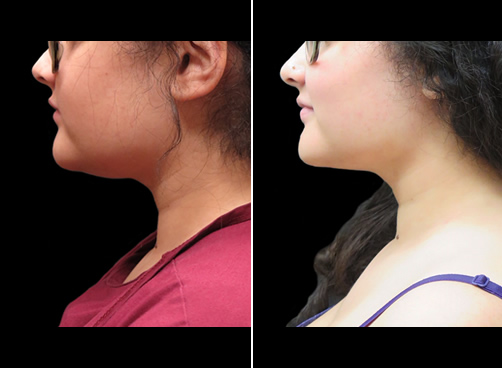 Chin Lipo Before And After Left Side View
