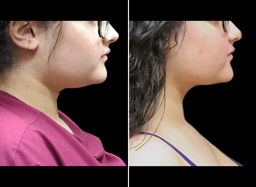 Chin Lipo Before And After Right Side View