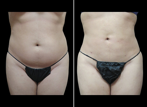 Liposuction For Women Before And After Front View