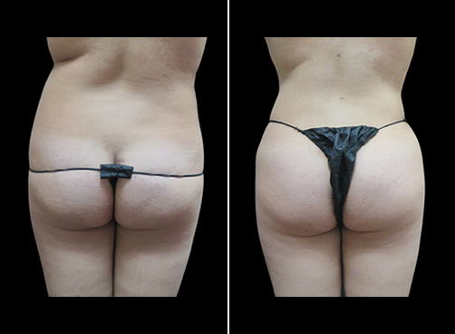 Liposuction For Women Before And After Back View