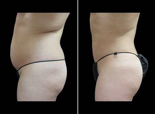 Lipo And Cellulaze Before And After Left Side Image