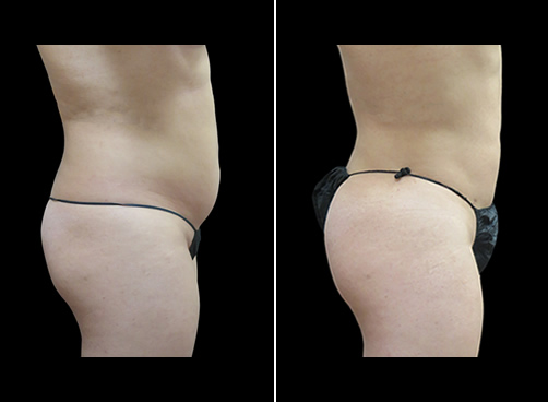 Lipo And Cellulaze Before And After Right Side Image