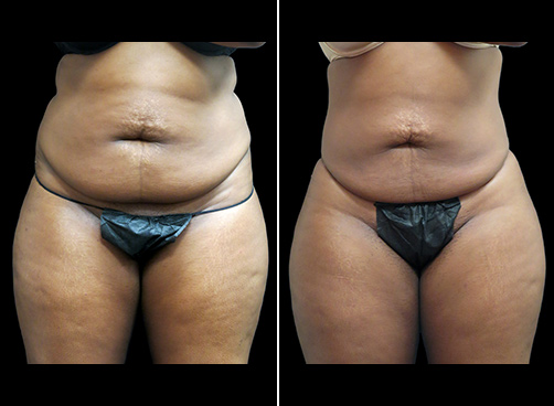 Abdominal Lipo Before And After Front Image