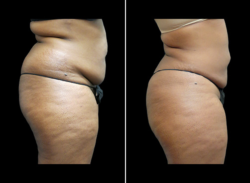 Abdominal Lipo Before And After Right Side Image