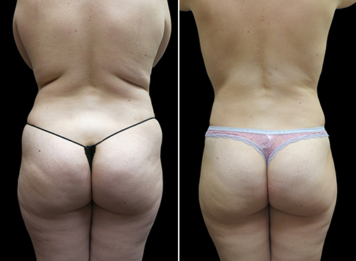 Before And After Liposuction For Women